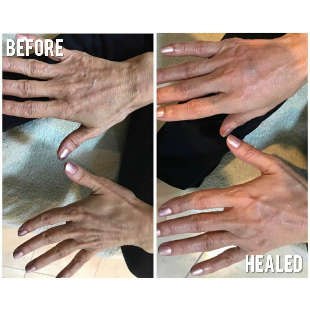 Top of Hands Skin Tightening